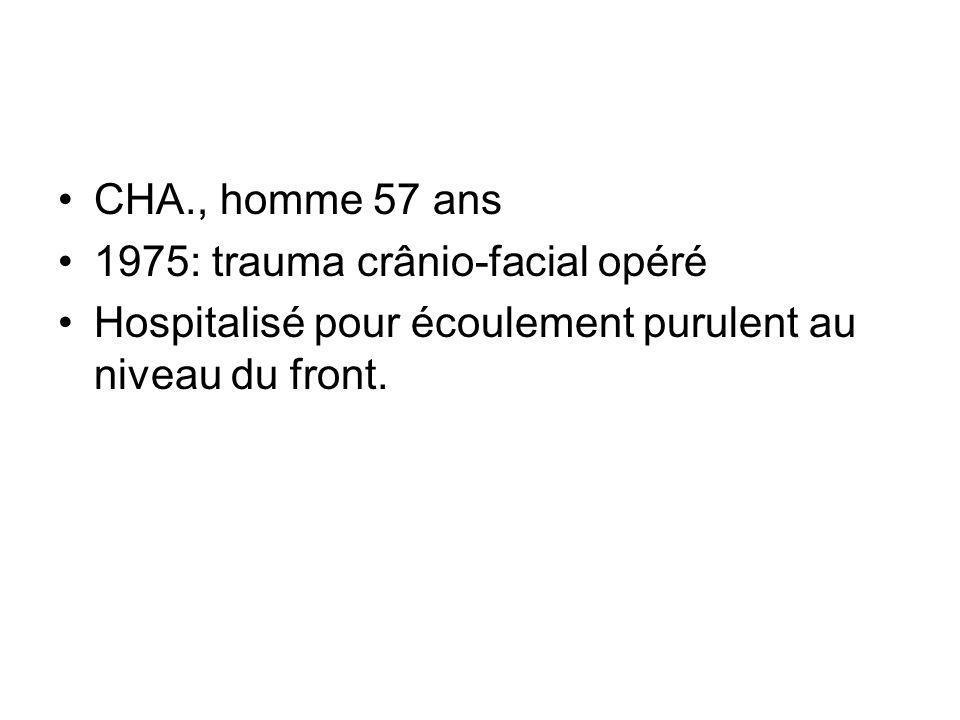 CHA., homme 57 ans 1975: trauma crânio-facial opéré Hospitalisé pour écoulement purulent au niveau du front.