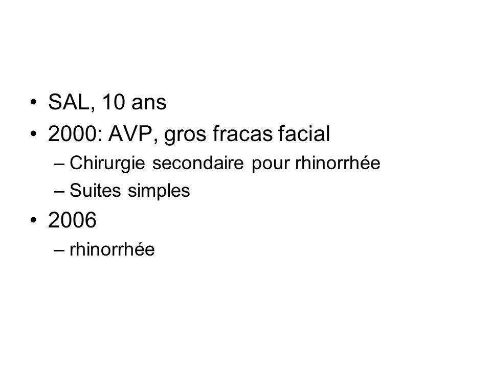 SAL, 10 ans 2000: AVP, gros fracas facial –Chirurgie secondaire pour rhinorrhée –Suites simples 2006 –rhinorrhée