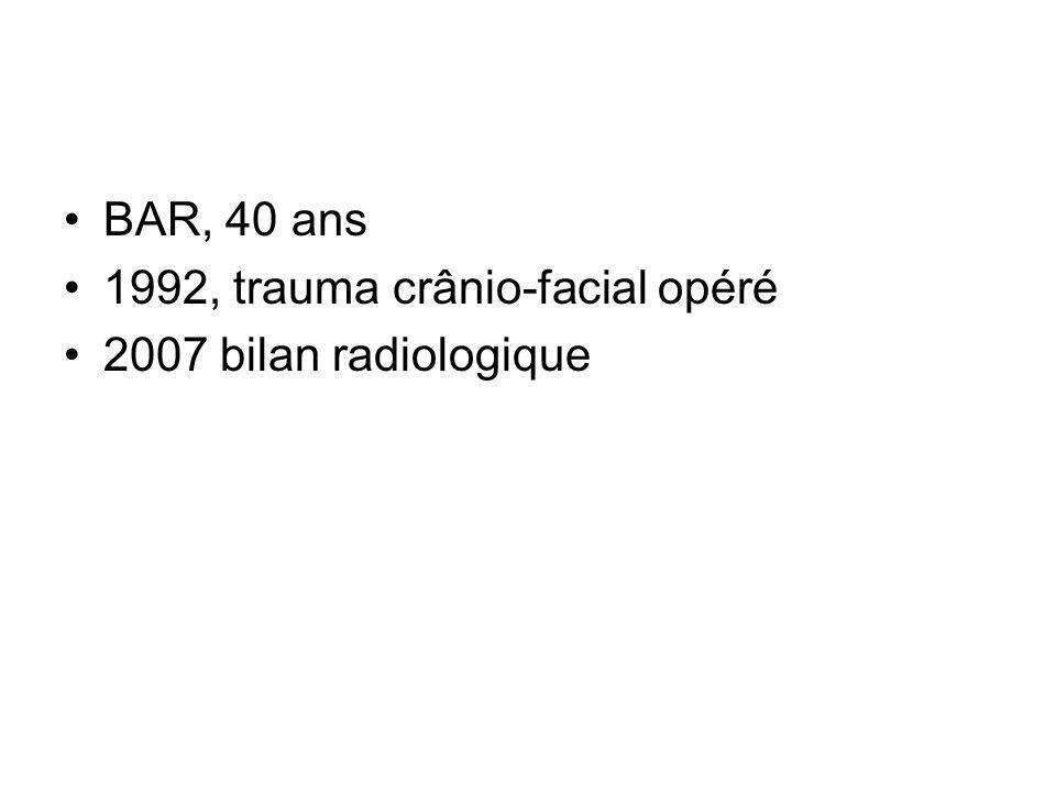 BAR, 40 ans 1992, trauma crânio-facial opéré 2007 bilan radiologique