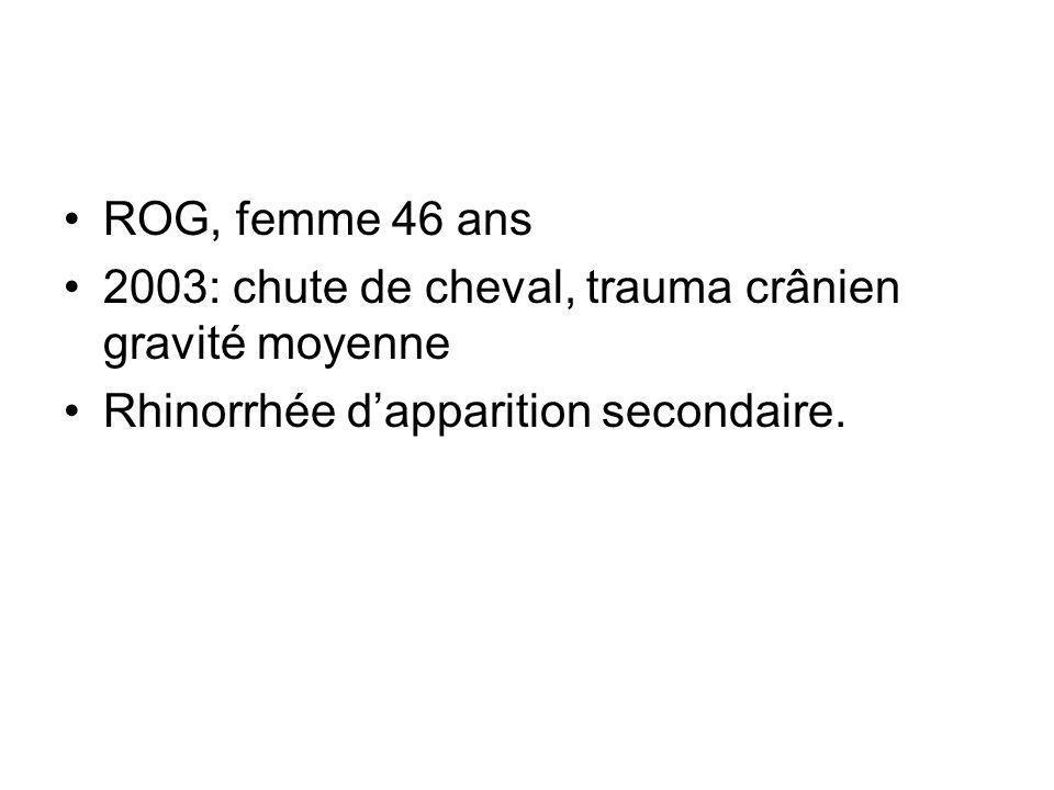 ROG, femme 46 ans 2003: chute de cheval, trauma crânien gravité moyenne Rhinorrhée dapparition secondaire.