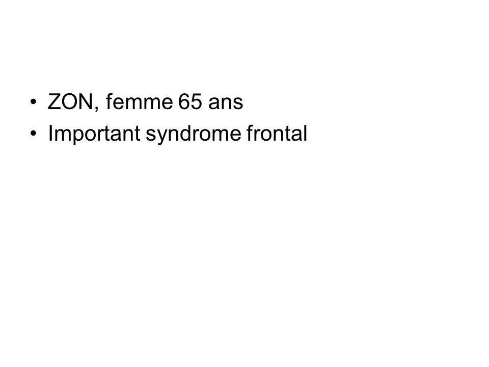 ZON, femme 65 ans Important syndrome frontal