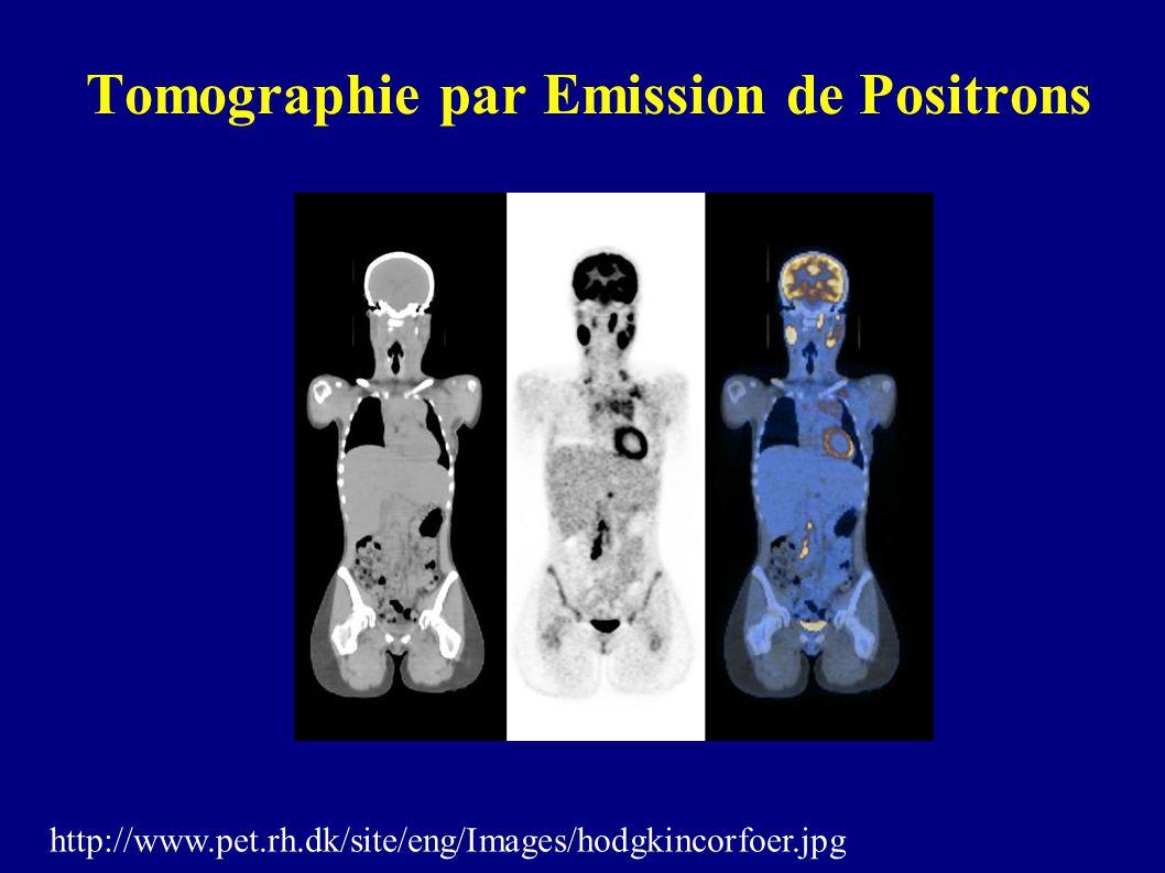 Tomographie par Emission de Positrons http://www.pet.rh.dk/site/eng/Images/hodgkincorfoer.jpg