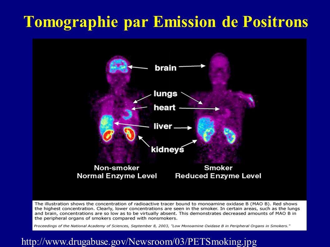 Tomographie par Emission de Positrons http://www.drugabuse.gov/Newsroom/03/PETSmoking.jpg