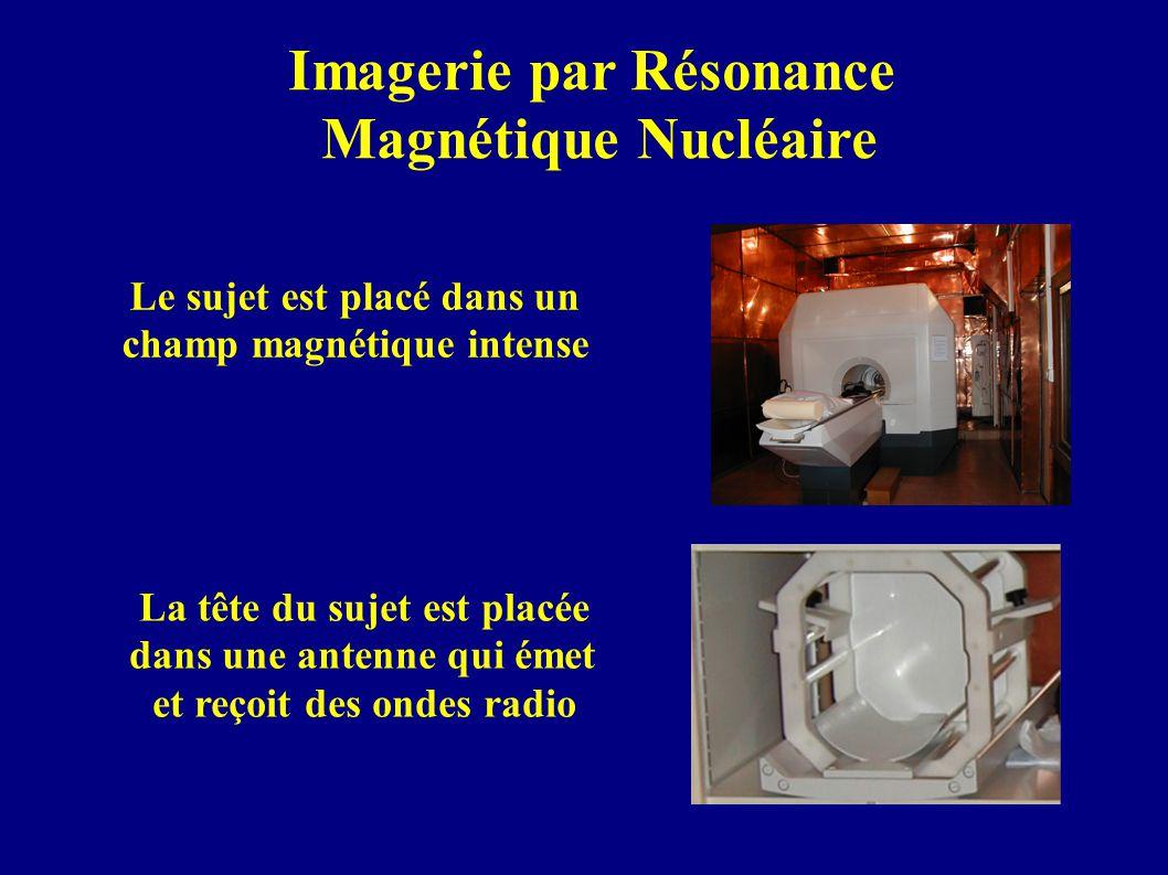 Imagerie par Résonance Magnétique Nucléaire Le sujet est placé dans un champ magnétique intense La tête du sujet est placée dans une antenne qui émet