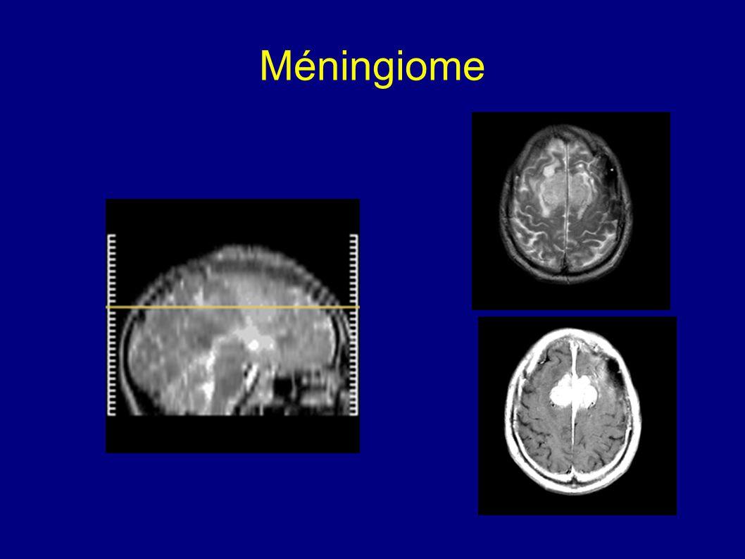 Méningiome
