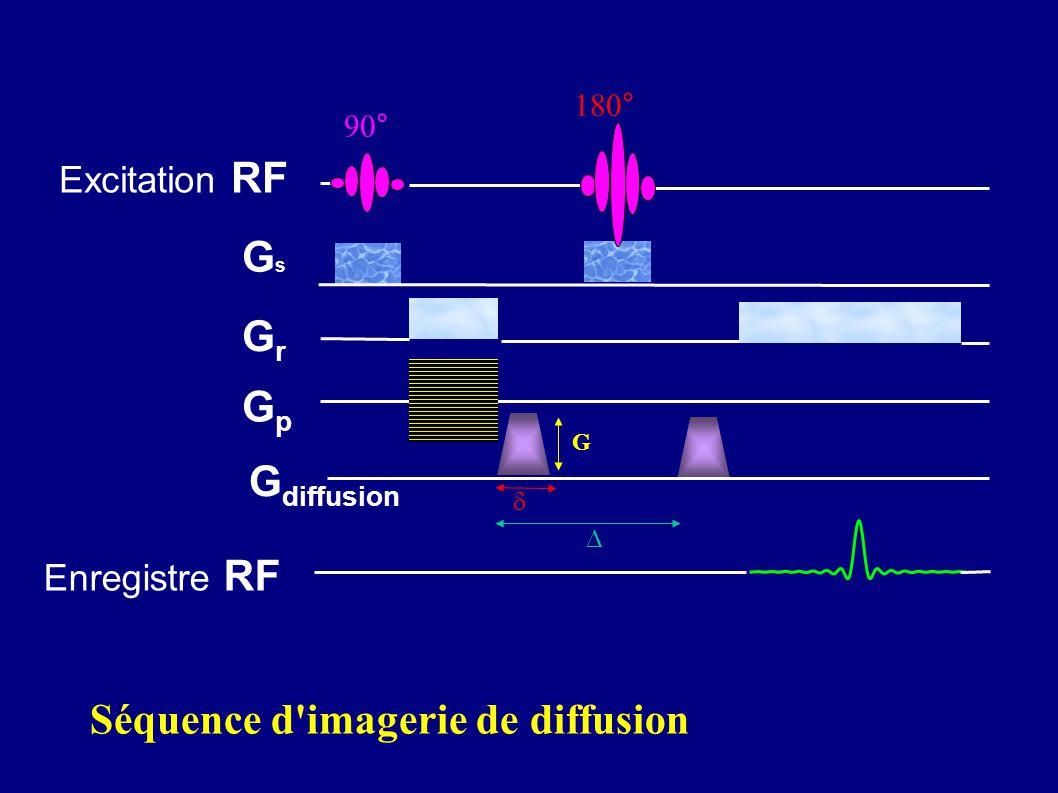 Excitation RF GsGs GrGr GpGp 180° 90° Enregistre RF G diffusion G Séquence d'imagerie de diffusion
