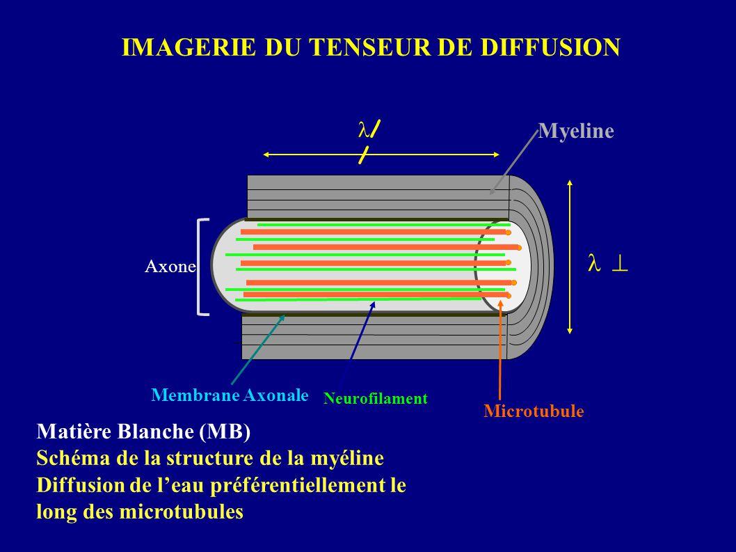 Matière Blanche (MB) Schéma de la structure de la myéline Diffusion de leau préférentiellement le long des microtubules IMAGERIE DU TENSEUR DE DIFFUSI