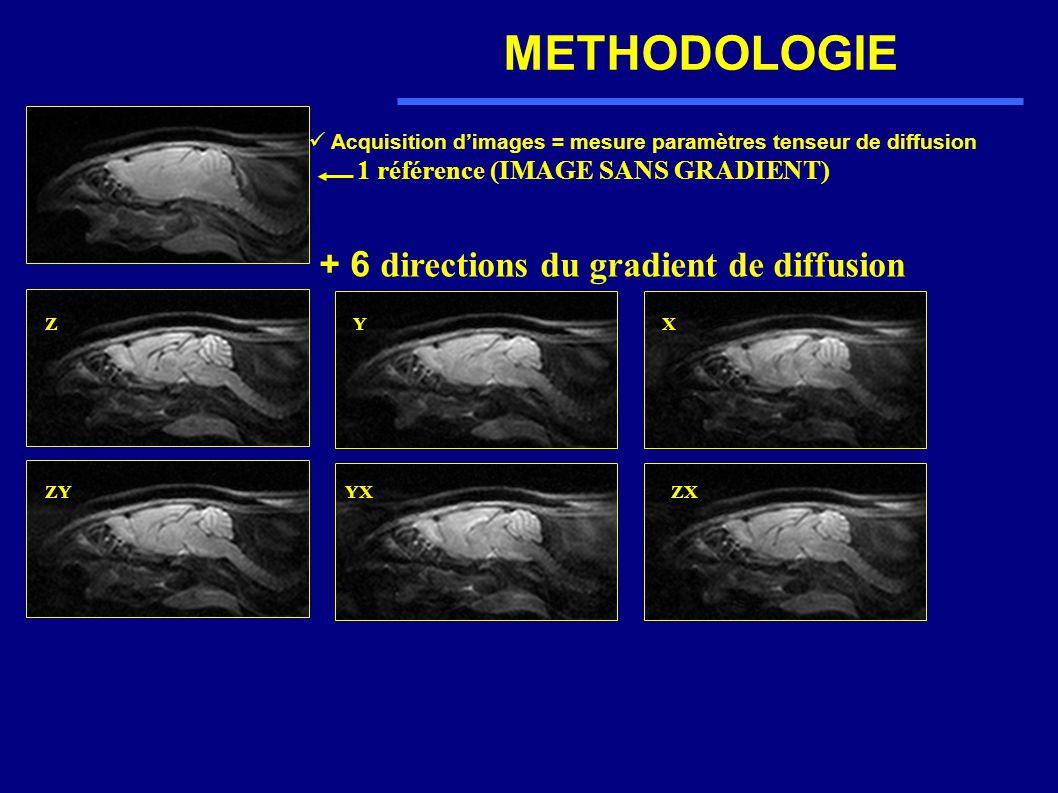 Acquisition dimages = mesure paramètres tenseur de diffusion 1 référence (IMAGE SANS GRADIENT) + 6 directions du gradient de diffusion ZY ZY X YXZX
