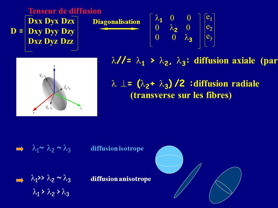 = ( 2 + 3 ) /2 : diffusion radiale (transverse sur les fibres) 1 0 0 0 2 0 0 0 3 e1e2e3e1e2e3 Tenseur de diffusion Dxx Dyx Dzx Dxy Dyy Dzy Dxz Dyz Dzz