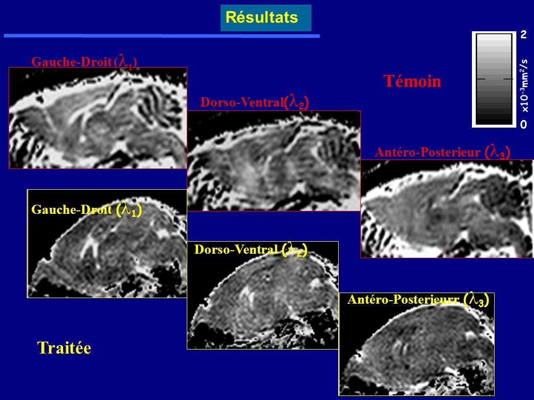 Gauche-Droit ( 1 ) Dorso-Ventral ( 2 ) Antéro-Posterieur ( 3 ) Témoin Traitée 0 2 x10 -3 mm 2 /s Gauche-Droit ( 1 ) Dorso-Ventral ( 2 ) Antéro-Posteri