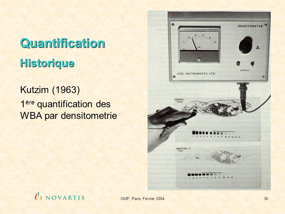 GMP, Paris, Février 200436 Quantification Historique Kutzim (1963) 1 ère quantification des WBA par densitometrie