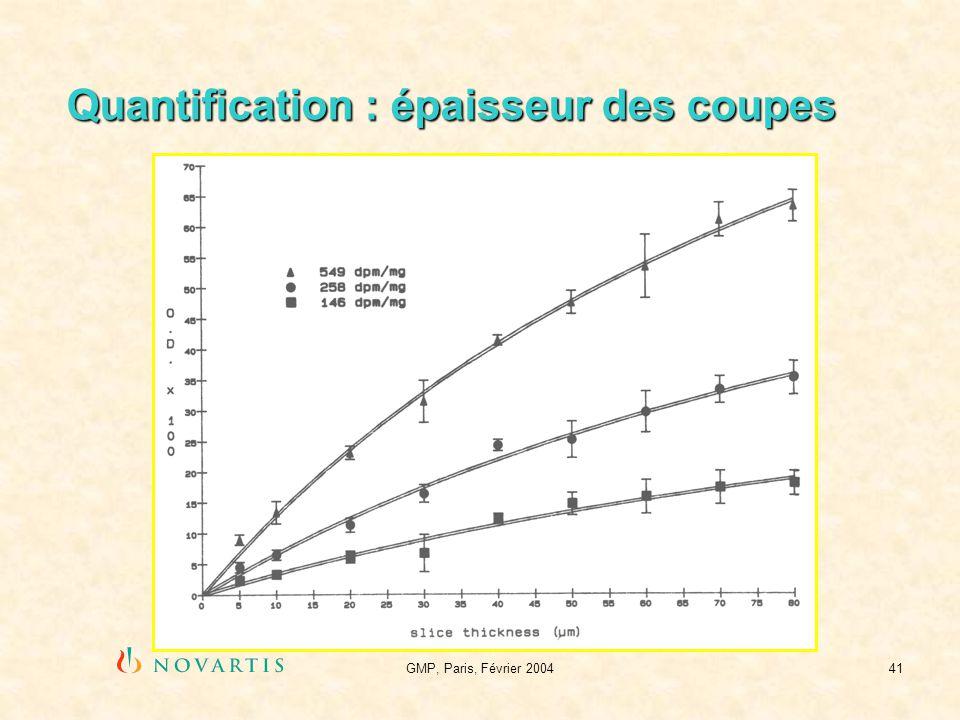 GMP, Paris, Février 200441 Quantification : épaisseur des coupes