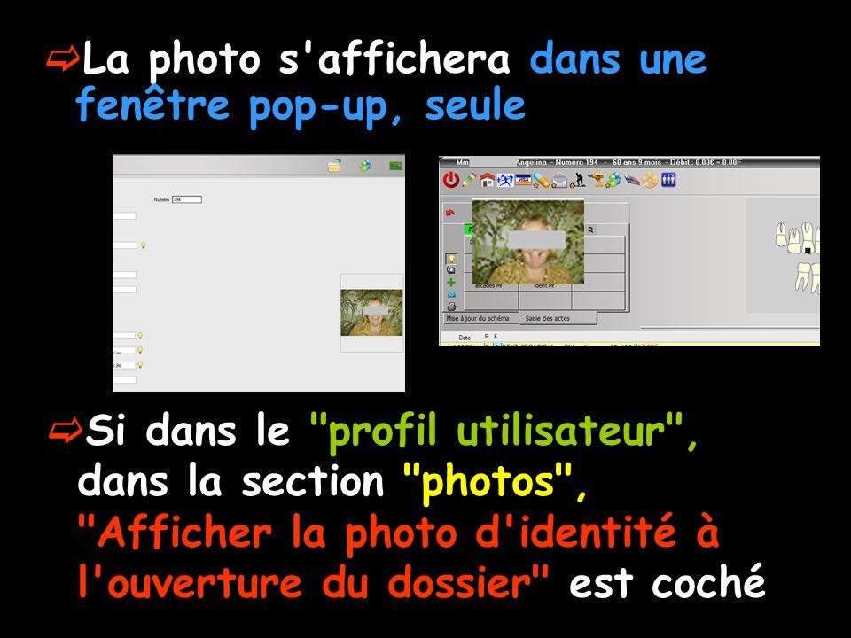 La photo s affichera dans une fenêtre pop-up, seule Si dans le profil utilisateur , dans la section photos , Afficher la photo d identité à l ouverture du dossier est coché