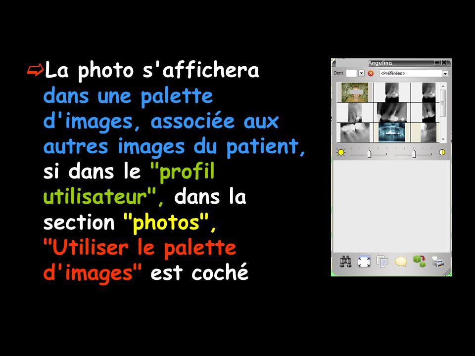 La photo s'affichera dans une palette d'images, associée aux autres images du patient, si dans le