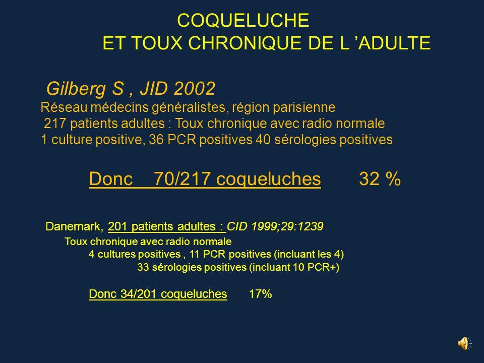 M … 16 ans toux quinteuse émétisante depuis 15 jours avec fracture de côte Cliniquement coqueluche évidente (pas de rappel récent) Mais PCR coq negati