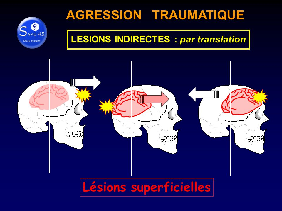 Lésions superficielles AGRESSION TRAUMATIQUE LESIONS INDIRECTES : par translation