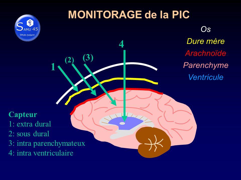 Os Dure mère Arachnoïde Parenchyme Ventricule 1 (2) (3) 4 Capteur 1: extra dural 2: sous dural 3: intra parenchymateux 4: intra ventriculaire MONITORAGE de la PIC