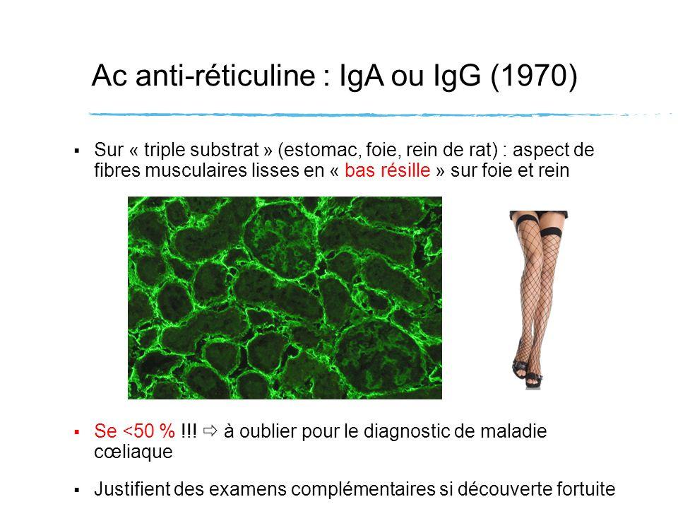 Ac anti-réticuline : IgA ou IgG (1970) Sur « triple substrat » (estomac, foie, rein de rat) : aspect de fibres musculaires lisses en « bas résille » s