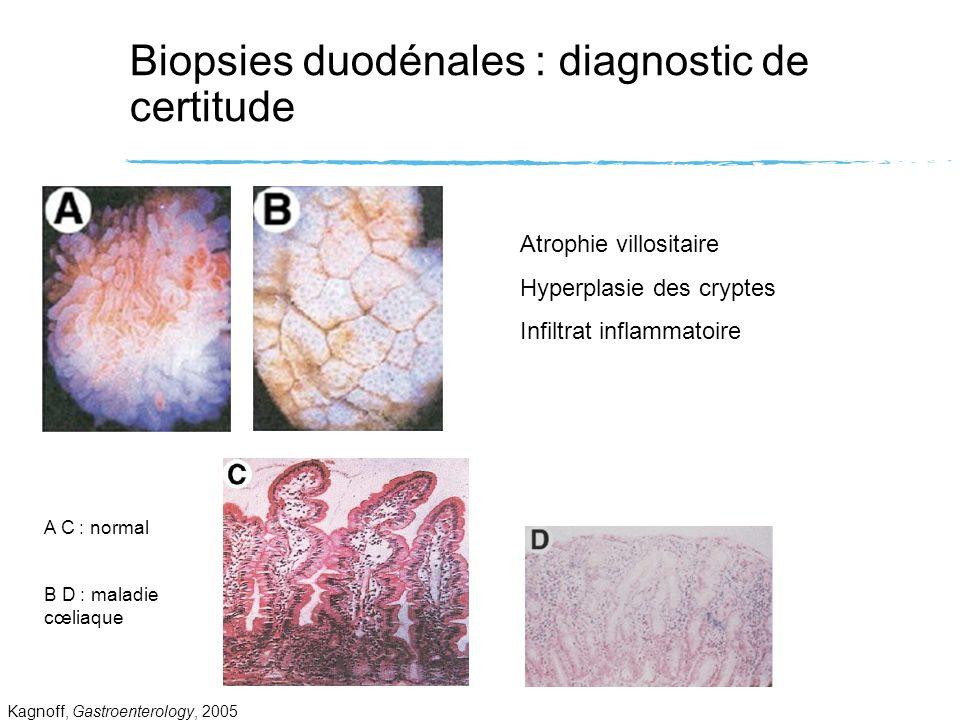Biopsies duodénales : diagnostic de certitude Kagnoff, Gastroenterology, 2005 Atrophie villositaire Hyperplasie des cryptes Infiltrat inflammatoire A