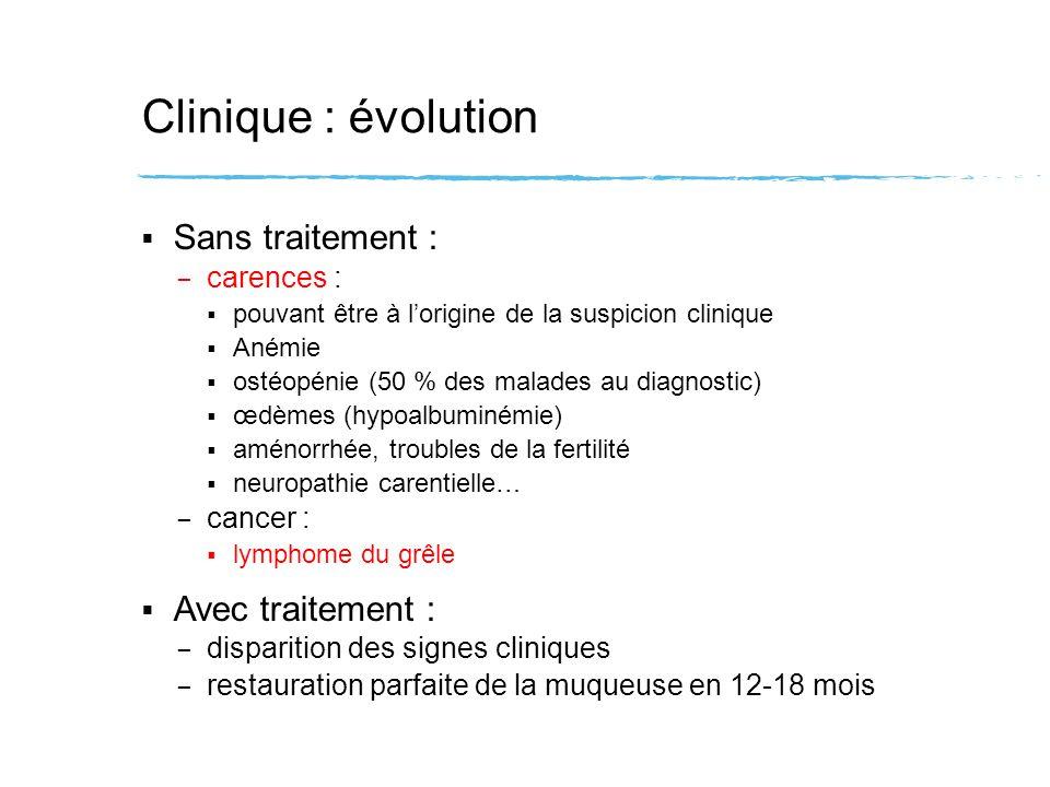 Intérêts de la sérologie cœliaque Poser lindication des biopsies si séro + Dépistage des cas « à risque » : – fratrie atteinte – pathologie associée : diabète de type 1 thyroïdopathies auto-immunes trisomie 21 Sd de Turner (45 X0) syndrome de Williams déficit sélectif en IgA hépatopathies auto-immunes Suivi thérapeutique : – Ac disparaissent avec le régime sans gluten Faire le diagnostic de maladie cœliaque
