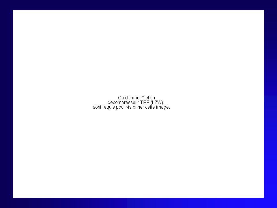 Paralysie Faciale Centrale Clinique –Atteinte prédominant sur territoire inférieur –Dissociation automatico-volontaire –Autres signes neurologiques Étiologie –Cortex frontale ascendante –Voie cortico-nucléaire –Ex: AVC, Tumeur ….