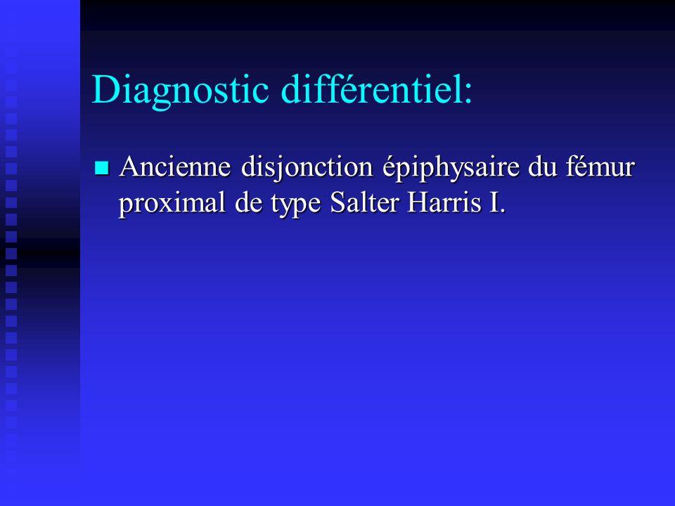 Diagnostic différentiel: Ancienne disjonction épiphysaire du fémur proximal de type Salter Harris I. Ancienne disjonction épiphysaire du fémur proxima