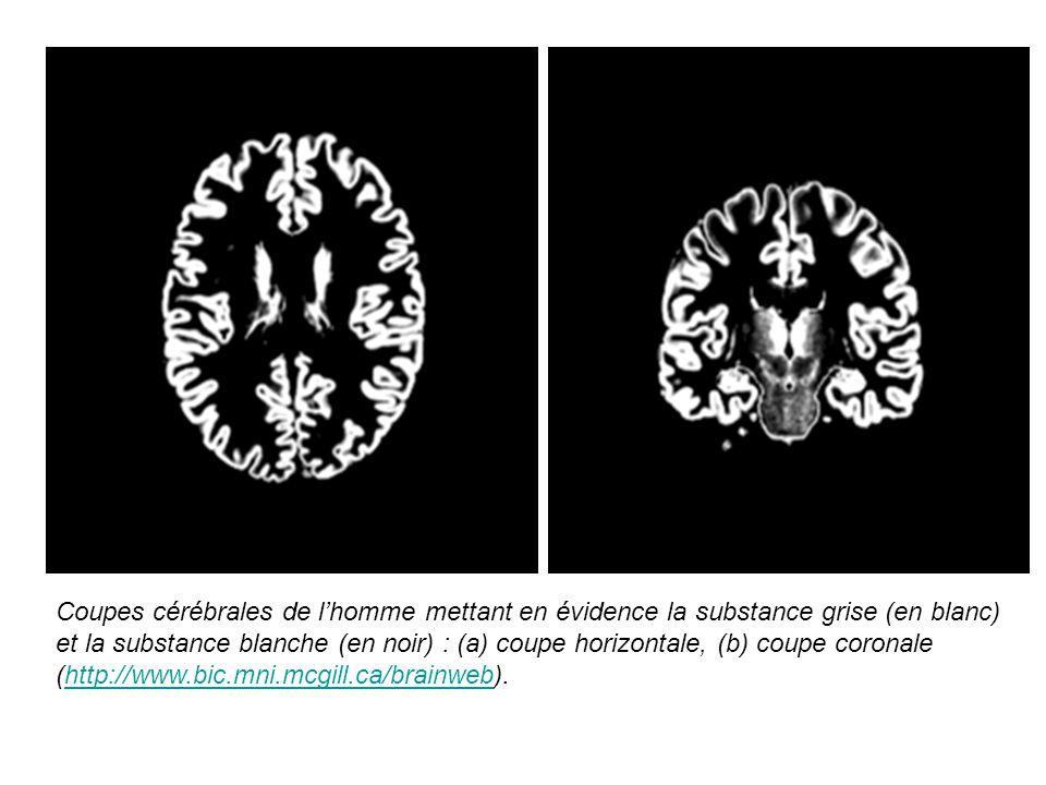 Coupes cérébrales de lhomme mettant en évidence la substance grise (en blanc) et la substance blanche (en noir) : (a) coupe horizontale, (b) coupe cor
