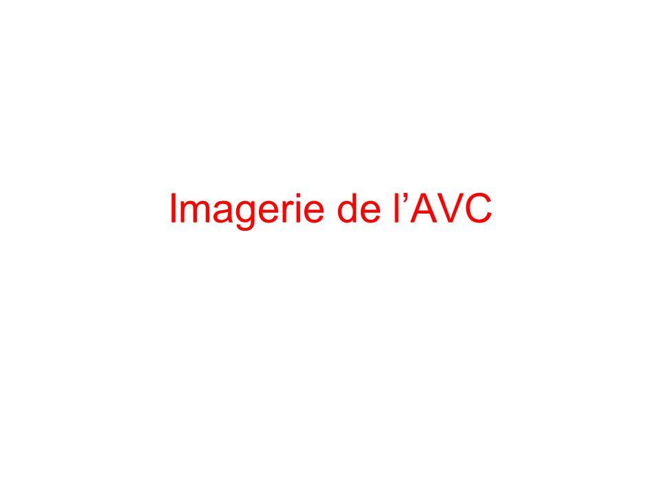 Imagerie de lAVC