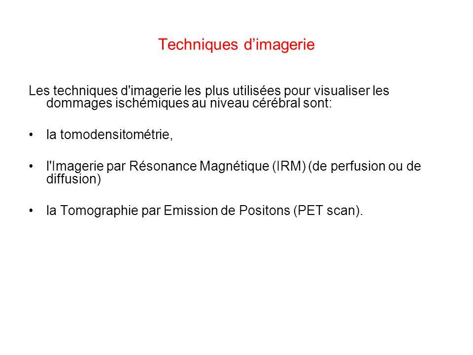 Techniques dimagerie Les techniques d'imagerie les plus utilisées pour visualiser les dommages ischémiques au niveau cérébral sont: la tomodensitométr