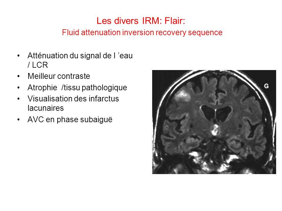 Les divers IRM: Flair: Fluid attenuation inversion recovery sequence Atténuation du signal de l eau / LCR Meilleur contraste Atrophie /tissu pathologi