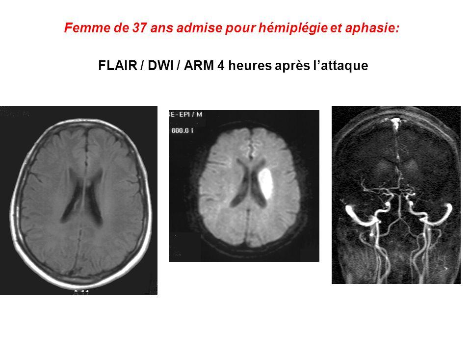Femme de 37 ans admise pour hémiplégie et aphasie: FLAIR / DWI / ARM 4 heures après lattaque