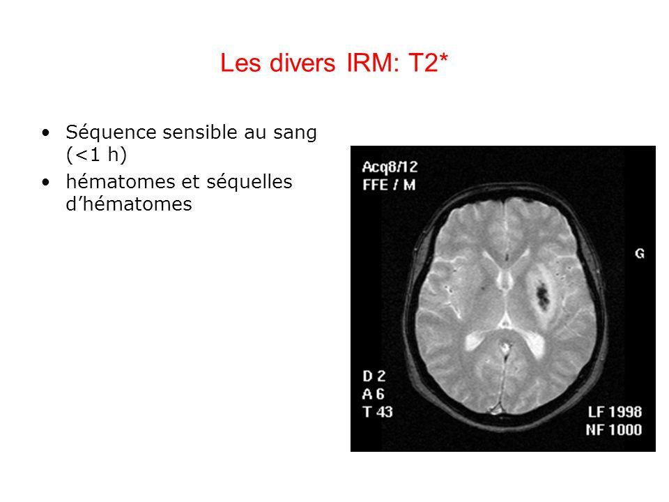 Les divers IRM: T2* Séquence sensible au sang (<1 h) hématomes et séquelles dhématomes