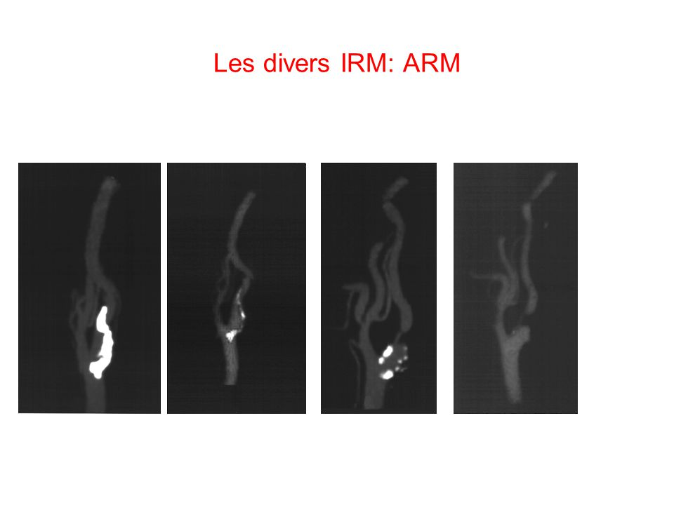 Les divers IRM: ARM
