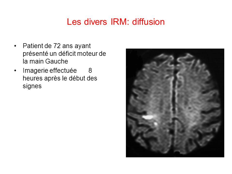 Les divers IRM: diffusion Patient de 72 ans ayant présenté un déficit moteur de la main Gauche Imagerie effectuée 8 heures après le début des signes