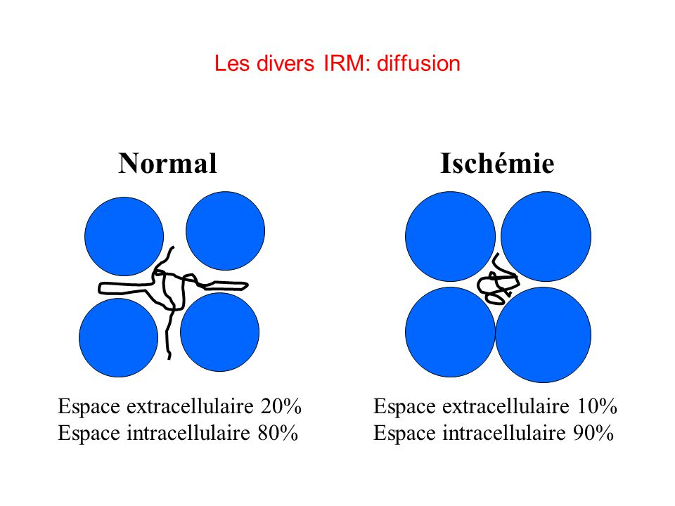 Espace extracellulaire 20% Espace intracellulaire 80% NormalIschémie Espace extracellulaire 10% Espace intracellulaire 90% Les divers IRM: diffusion