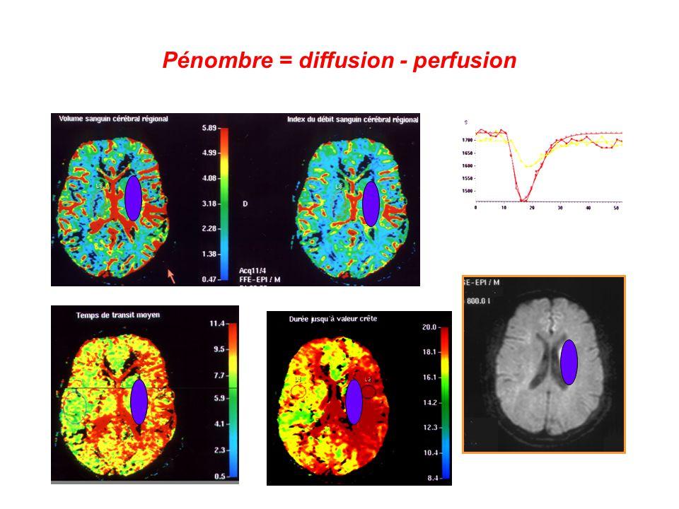 Pénombre = diffusion - perfusion