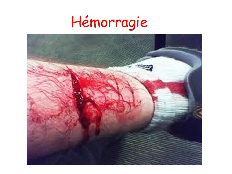 Hémorragie