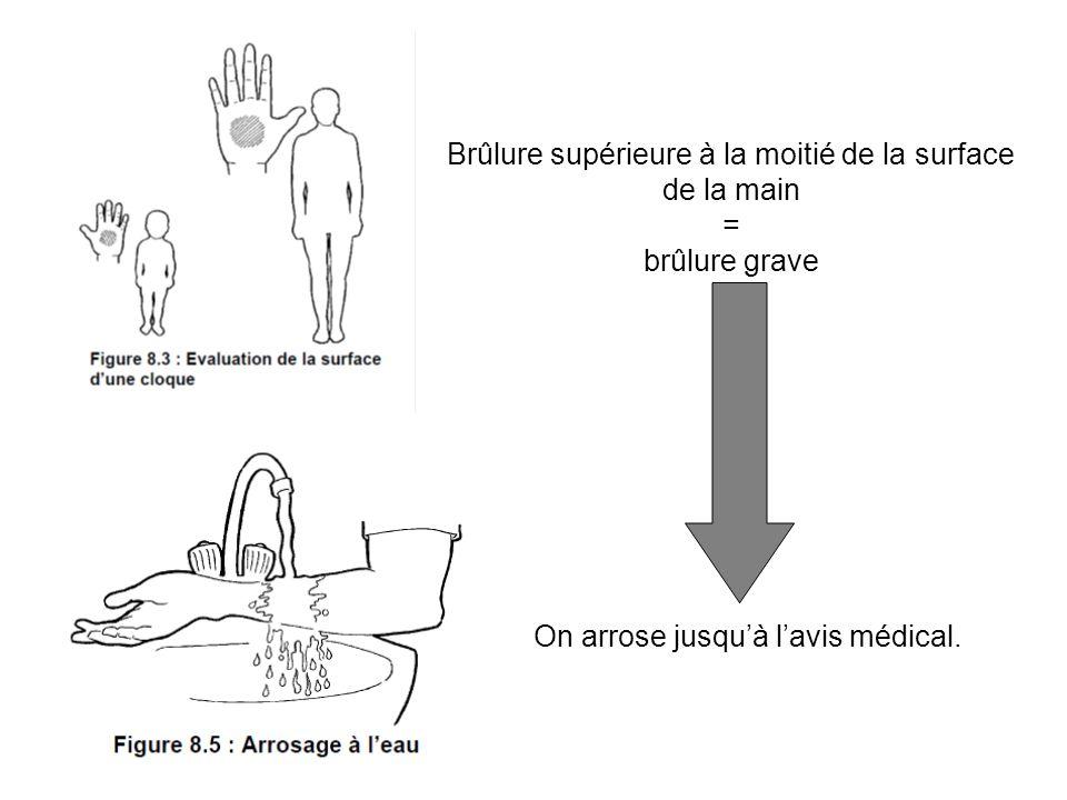 Brûlure supérieure à la moitié de la surface de la main = brûlure grave On arrose jusquà lavis médical.
