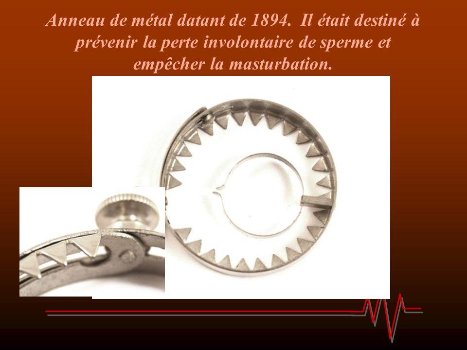 Anneau de métal datant de 1894. Il était destiné à prévenir la perte involontaire de sperme et empêcher la masturbation.