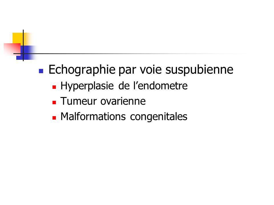 Echographie par voie suspubienne Hyperplasie de lendometre Tumeur ovarienne Malformations congenitales