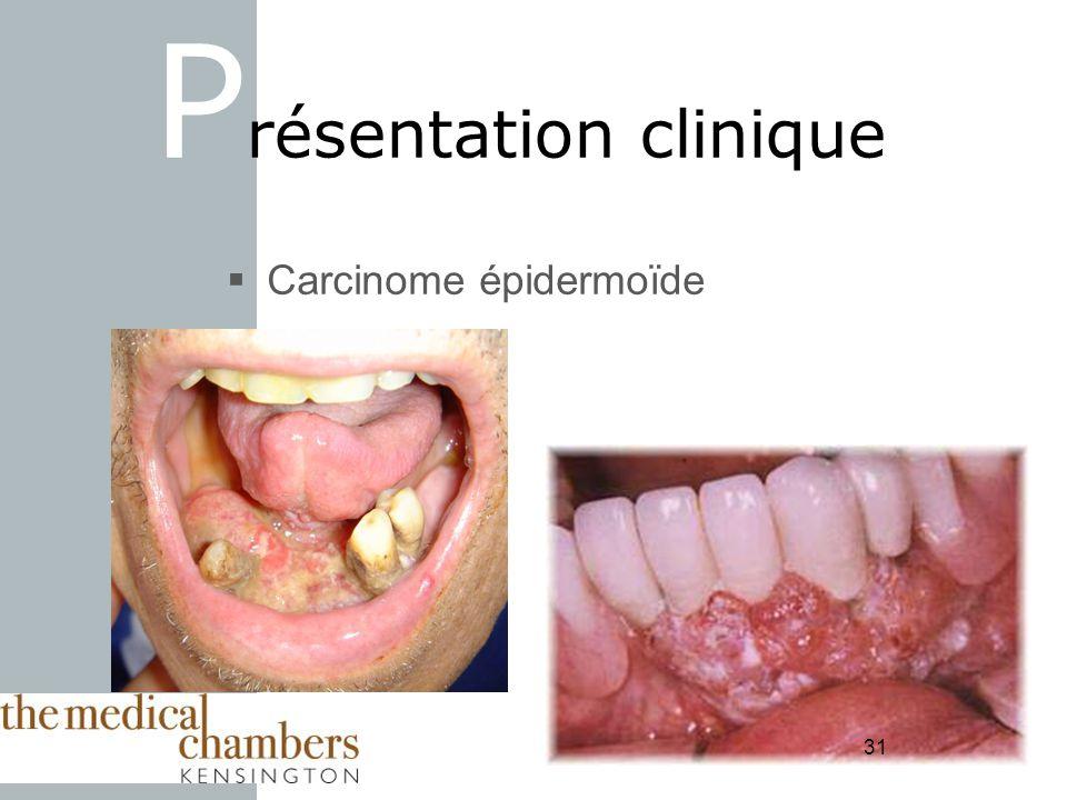 31 Carcinome épidermoïde P résentation clinique