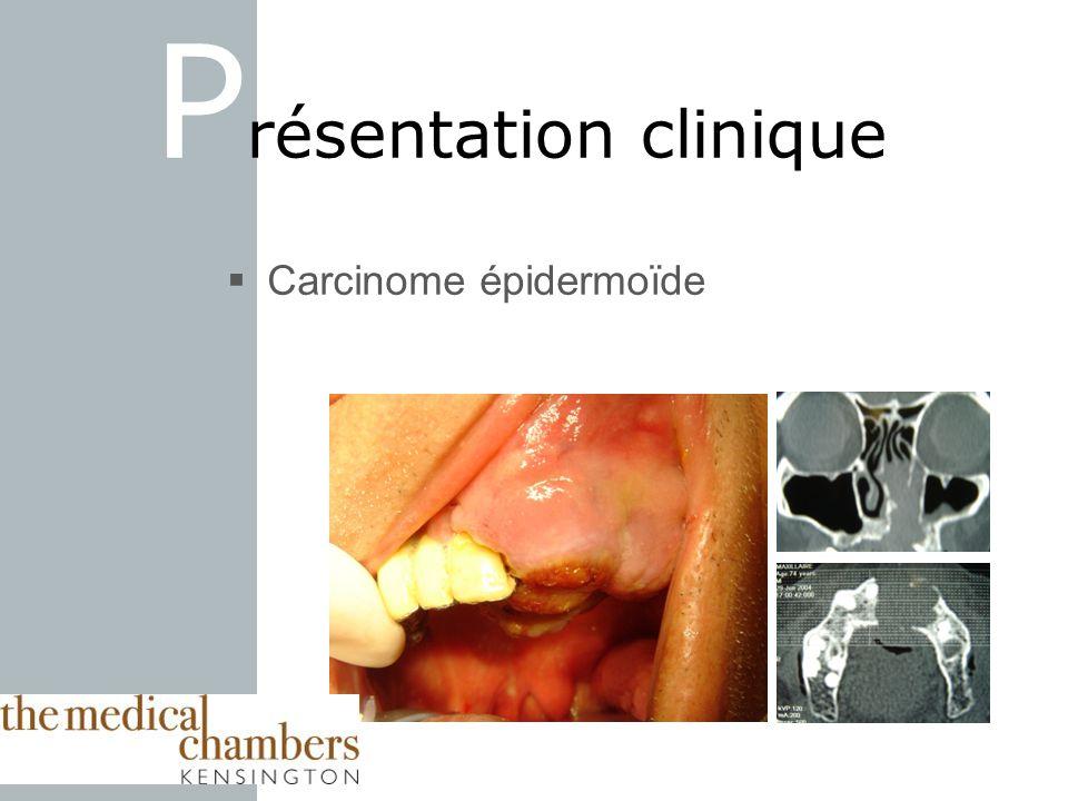 Carcinome épidermoïde P résentation clinique