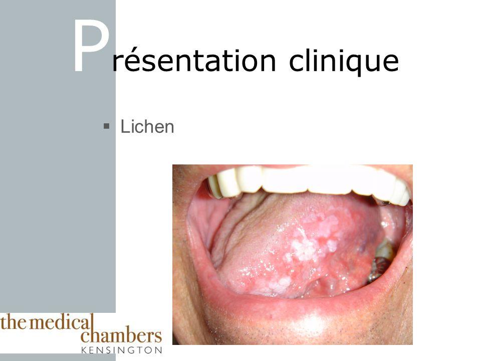Lichen P résentation clinique