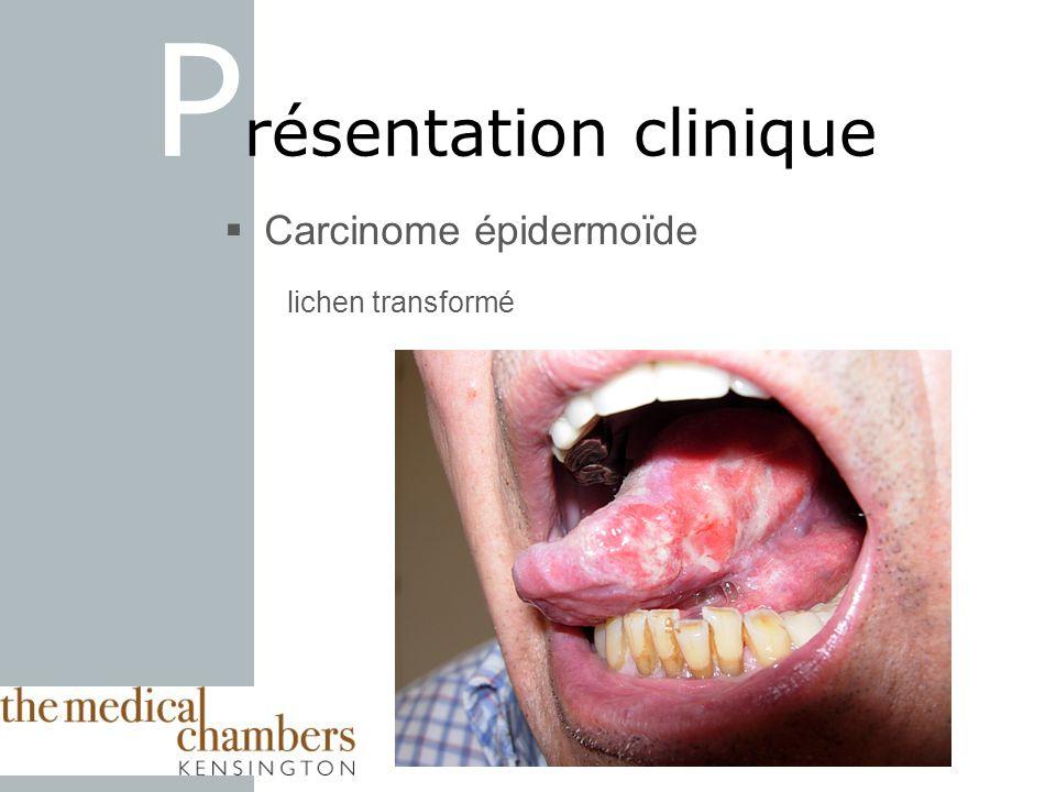 Carcinome épidermoïde lichen transformé P résentation clinique