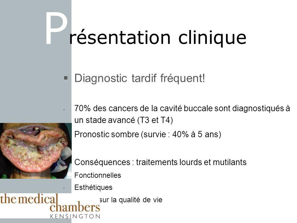Diagnostic tardif fréquent! 70% des cancers de la cavité buccale sont diagnostiqués à un stade avancé (T3 et T4) Pronostic sombre (survie : 40% à 5 an