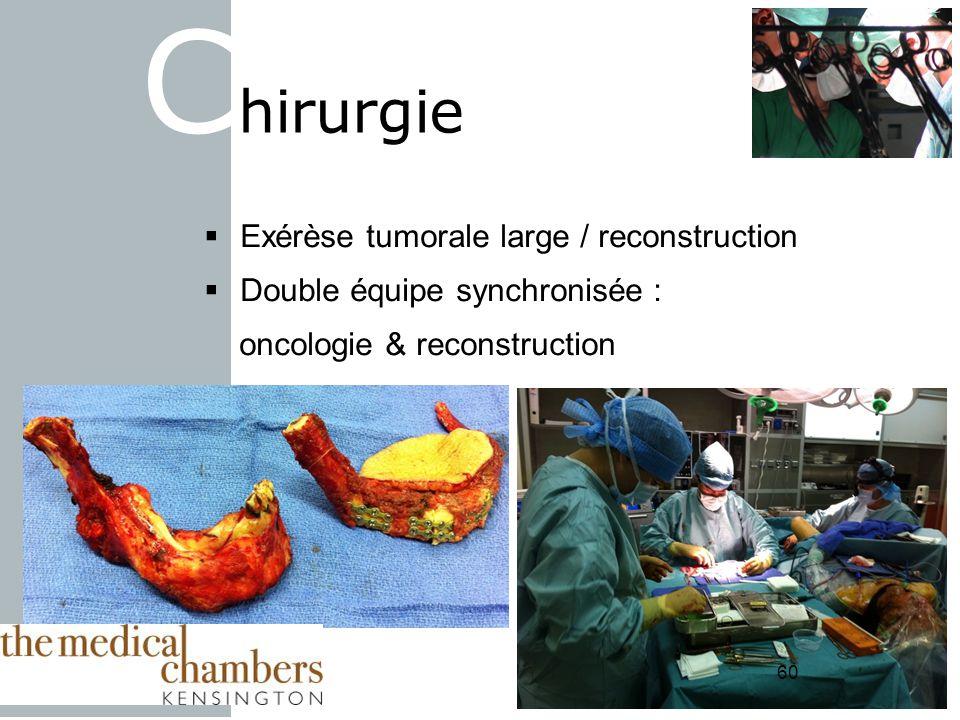 60 Exérèse tumorale large / reconstruction Double équipe synchronisée : oncologie & reconstruction C hirurgie