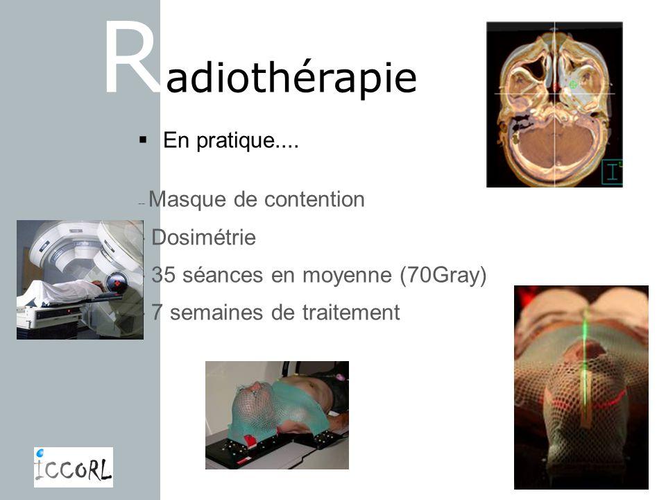R adiothérapie En pratique.... -- Masque de contention - Dosimétrie - 35 séances en moyenne (70Gray) - 7 semaines de traitement