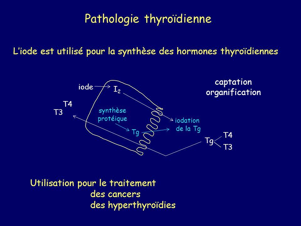 Pathologie thyroïdienne Liode est utilisé pour la synthèse des hormones thyroïdiennes iode I2I2 synthèse protéique Tg iodation de la Tg Tg T3 T4 T3 T4