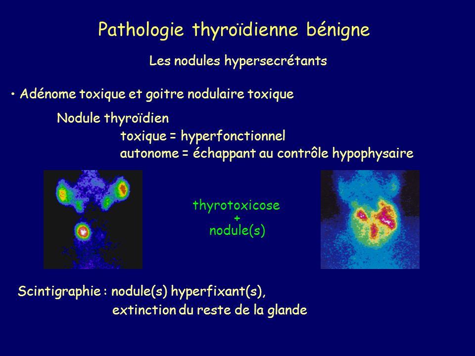 Pathologie thyroïdienne bénigne Les nodules hypersecrétants Adénome toxique et goitre nodulaire toxique Nodule thyroïdien toxique = hyperfonctionnel a