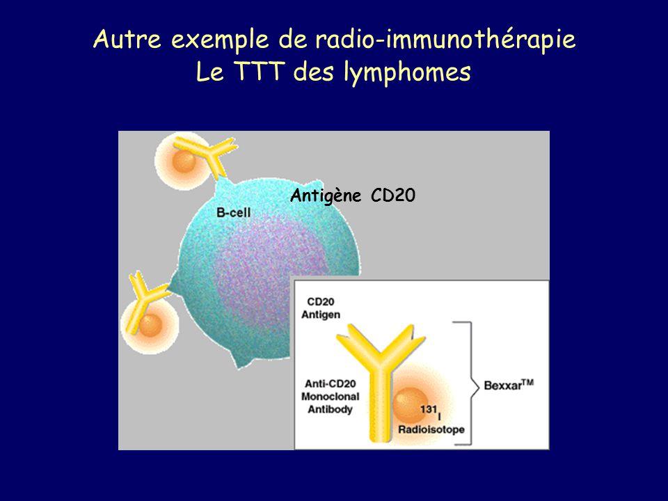 Autre exemple de radio-immunothérapie Le TTT des lymphomes Antigène CD20